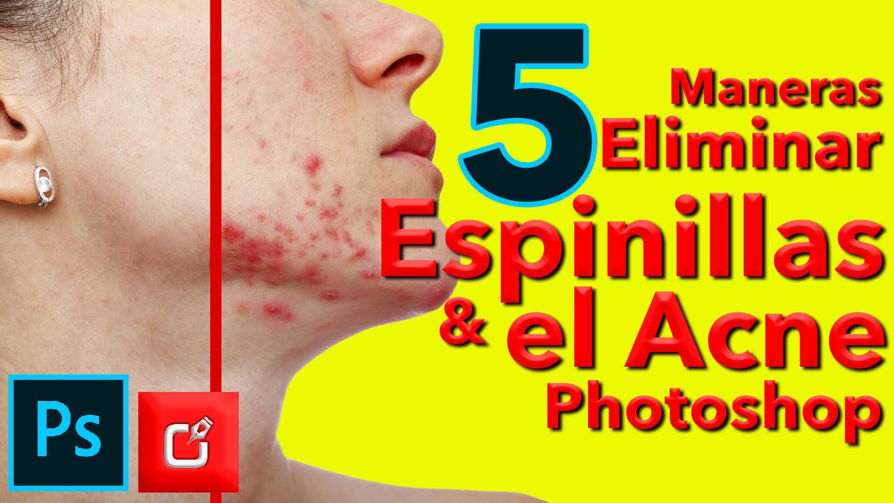 5 maneras de ELIMINAR las espinillas, barros y acné en PHOTOSHOP
